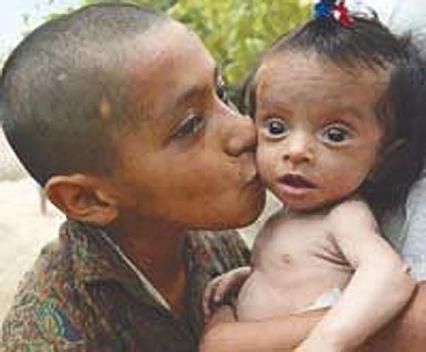 6.9 millones de niños menores de 5 años murieron en 2011